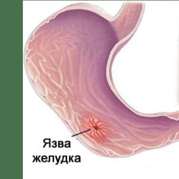 Клиника язвы желудка и двенадцатиперстной