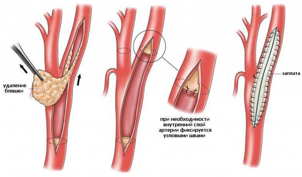 Болят ноги атеросклероз артерий