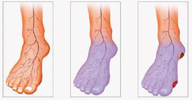 стадии развития атеросклероза нижних конечностей